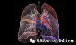 NVIDIA推适用于医学影像的迁移学习工具包和 AI 辅助注释 SDK