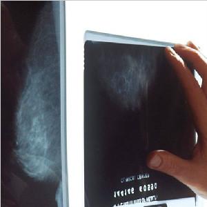 MIT部署深度学习工具  更准确分析X光片助力乳癌筛查