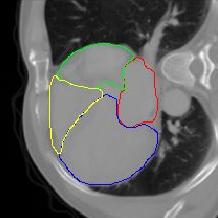 深度学习赋能肿瘤诊疗,GPU加速计算实现器官自动分割