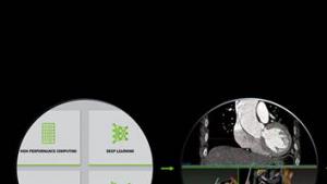 Clara AI让每位放射科医生亲自训练出属于自己的AI