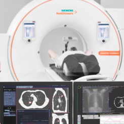 NVIDIA助力西门子医疗用AI帮助简化癌症治疗过程