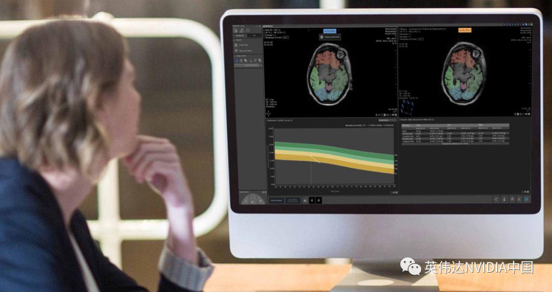 初创公司利用深度学习助力医生检测痴呆症