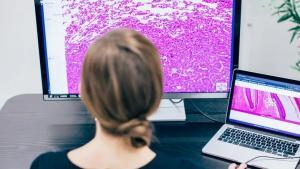 病理学家的福音!NVIDIA 助力初创公司发展 AI 辅助病理学