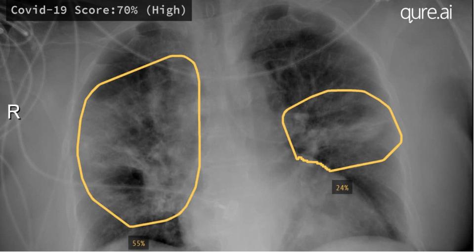 """让影像""""发声"""",NVIDIA初创加速计划成员助力新冠肺炎临床"""