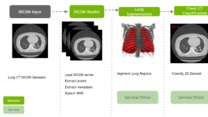 NVIDIA Clara Deploy增加全新工作流程、运算符,提高研发效率