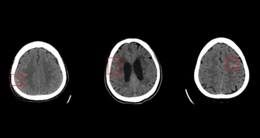 NVIDIA GPU赋能AI初创公司协助医生诊断脑出血