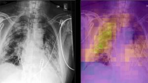 麻省总医院Martinos中心将AI用于COVID-19和放射学研究